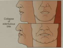 FacialCollapseDiagram