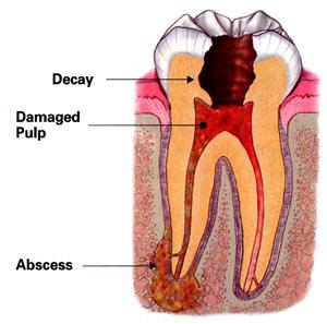 dentist-emergency-abscess