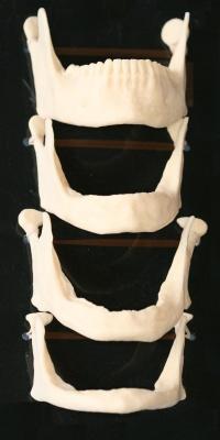 facial-collapse-resorption